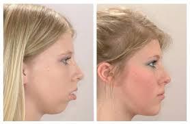 Ортодонтия-исправление формы лица