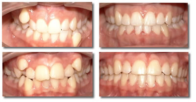 Исправление искривленных зубов