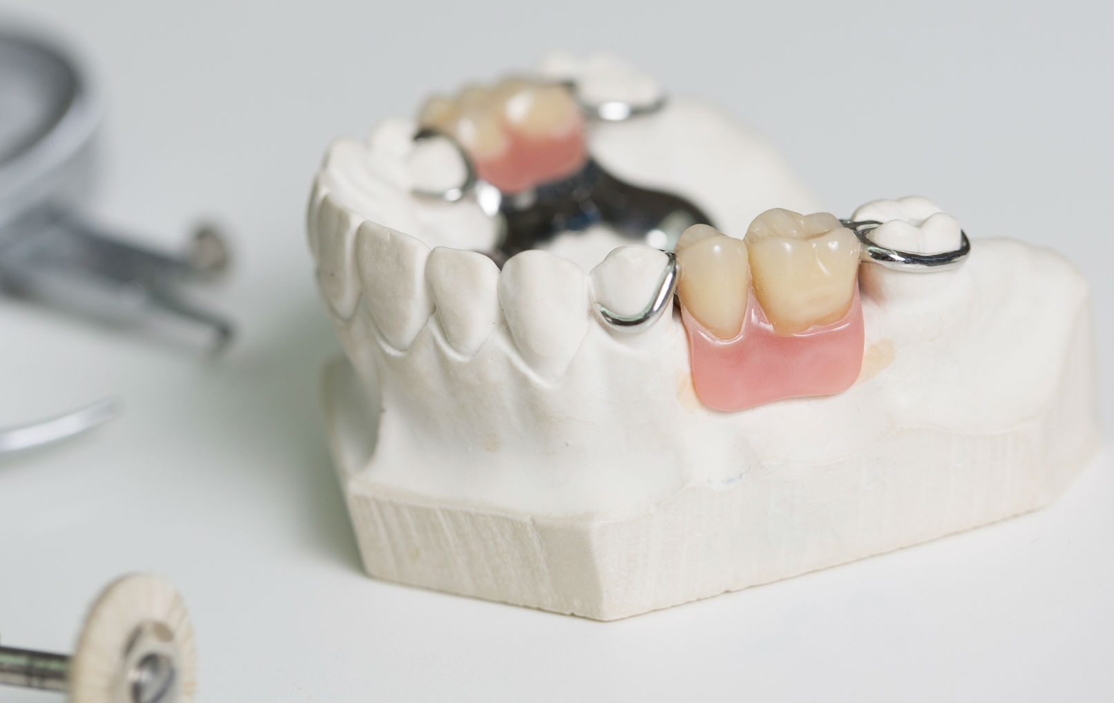Металлокерамические протезы и культевые коронки