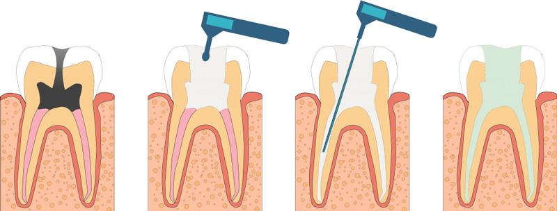 Лечение пульпита в клинике Семейный стоматолог