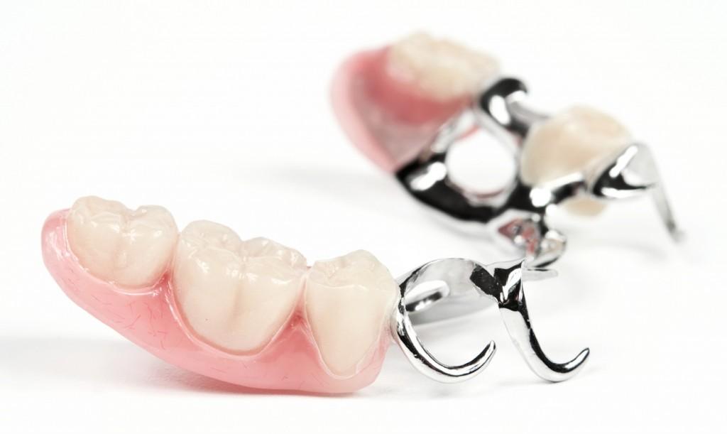 Семейный стоматолог протезирование-Бюгель