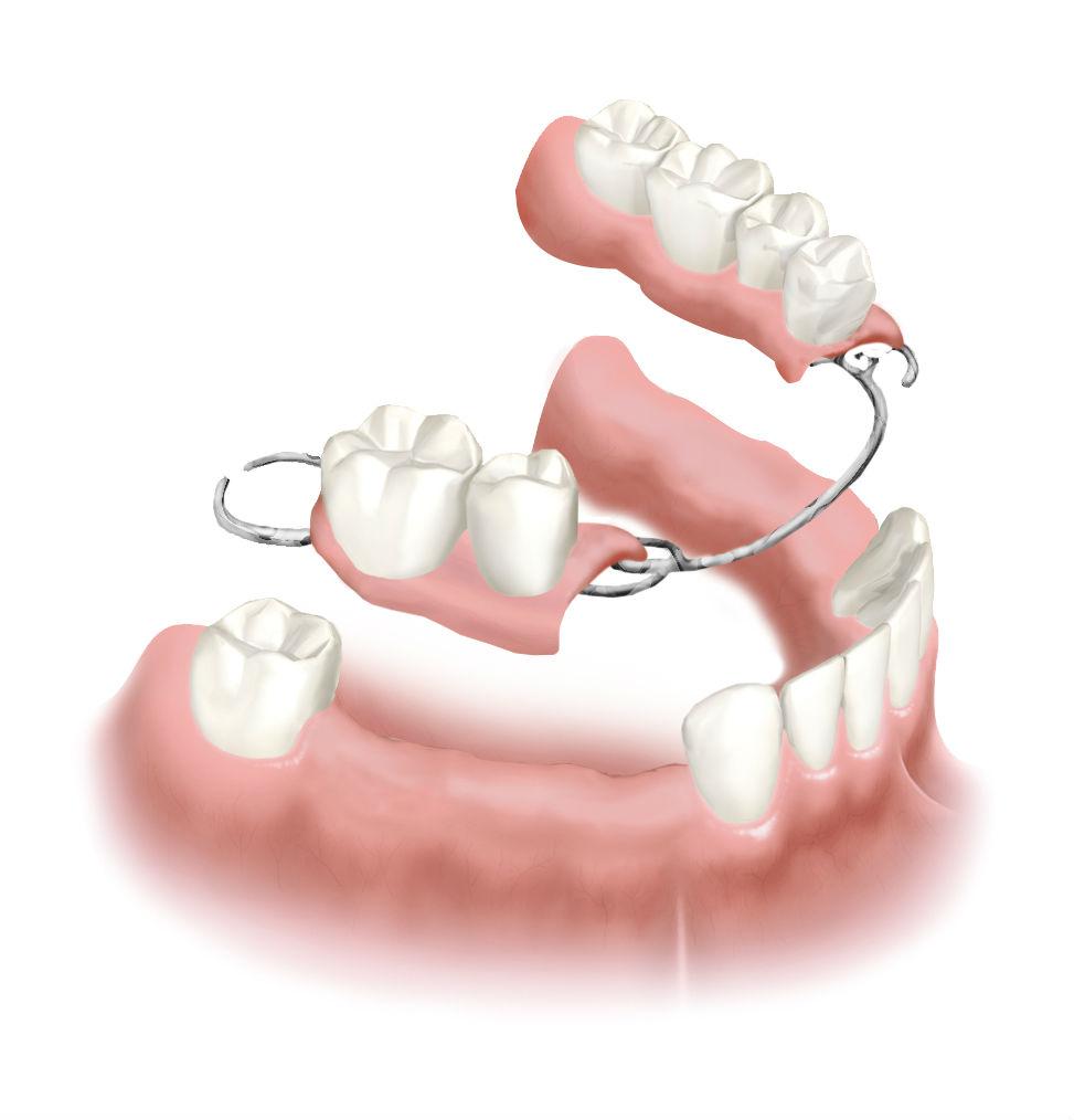 Бюгельное протезирование зубов в Семейном стоматологе
