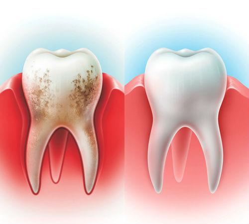 Вектор-лечение в Семейном стоматологе