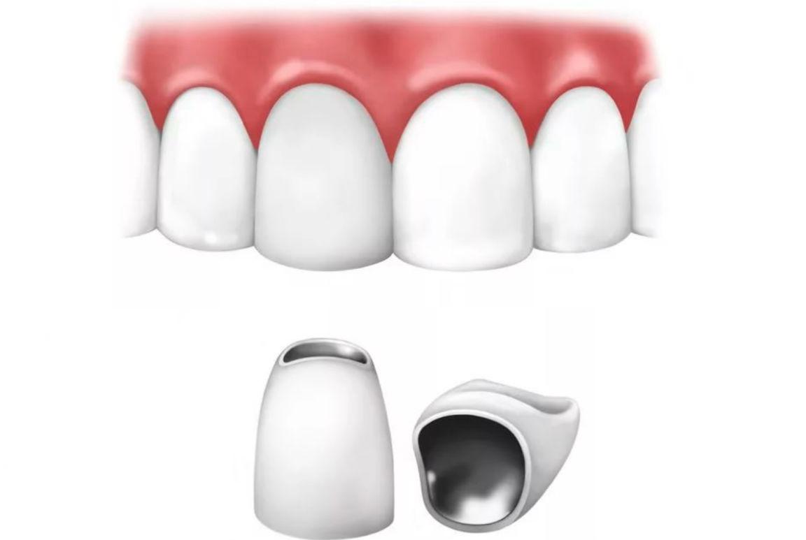 металлокерамические протезы
