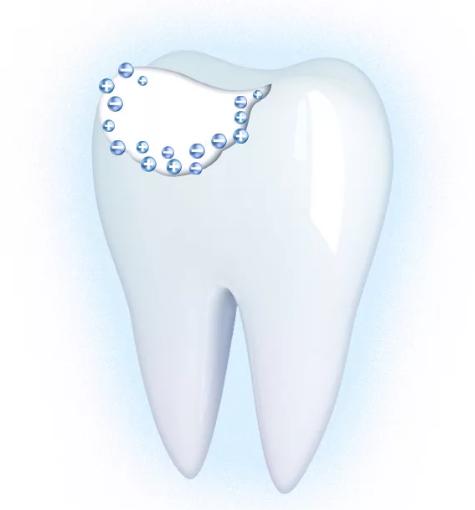 Меловидное пятно на зубах