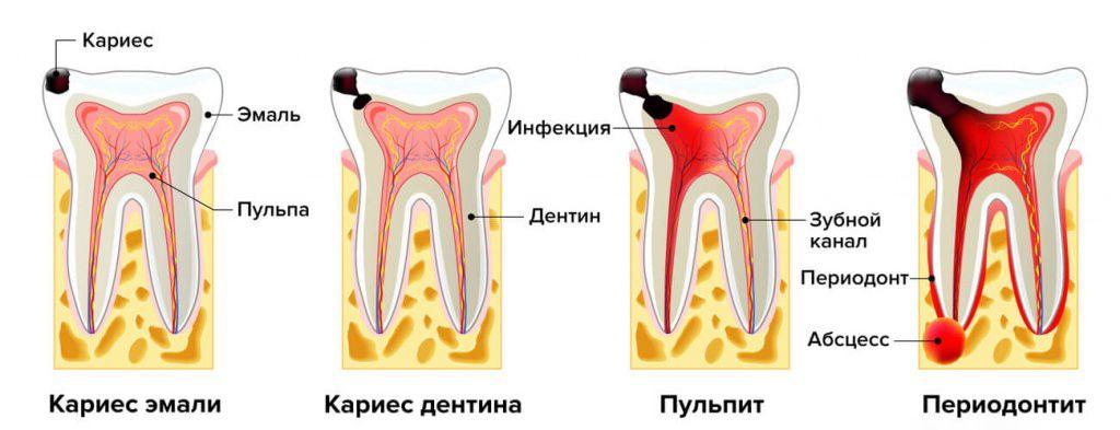 периодонтит апикальный