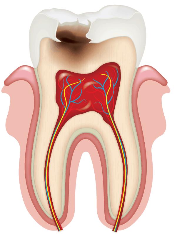 Разрушение зуба