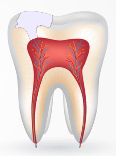 Дефект в зубах