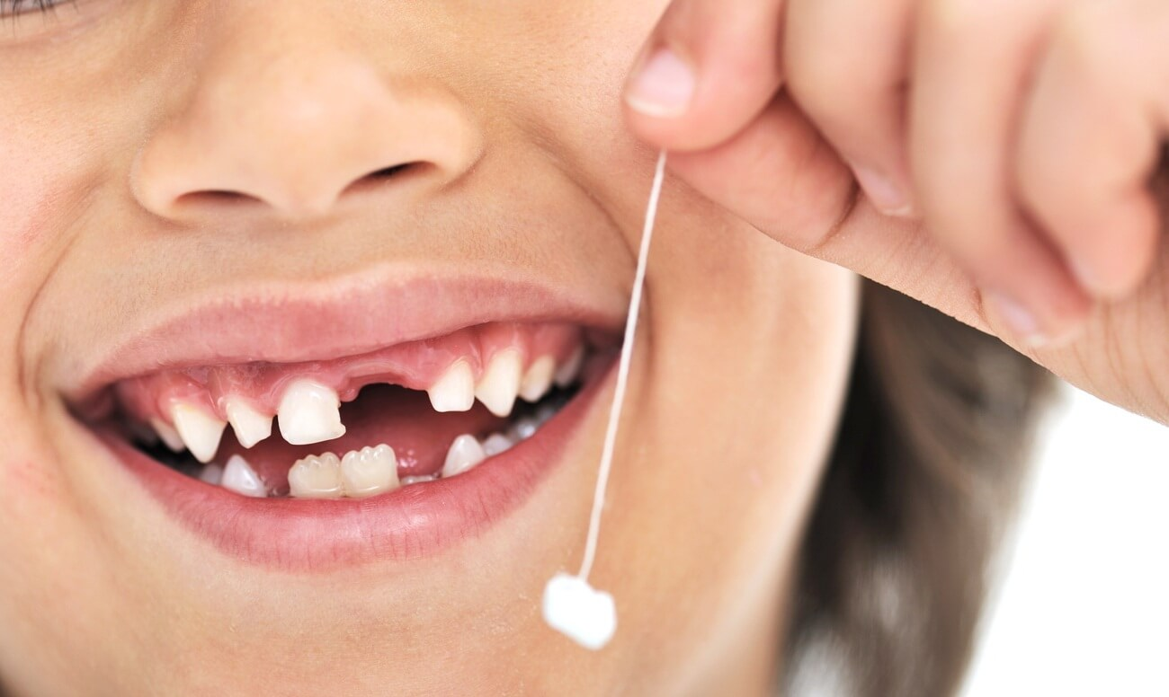Потеря молочных зубов