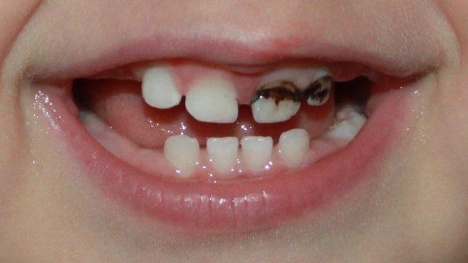 разрушение временных зубов