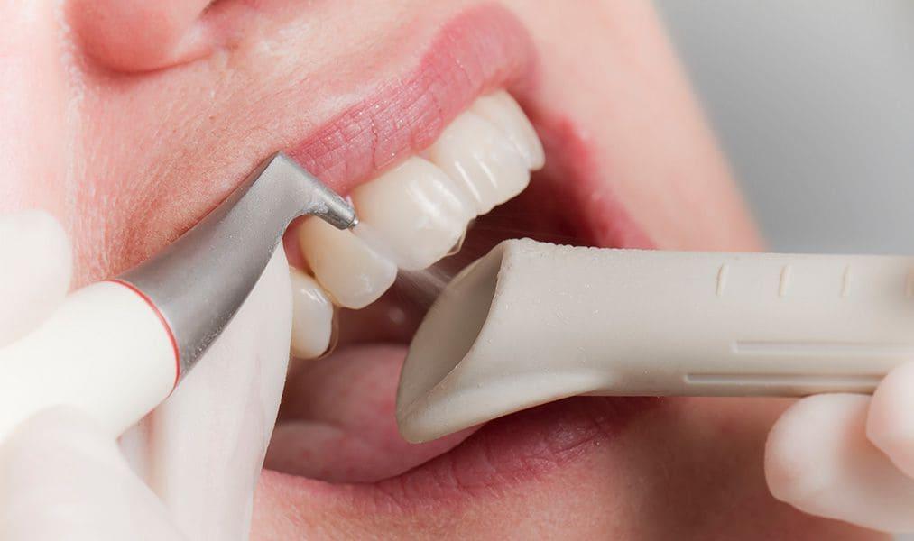 чистка зубов системой Air flow