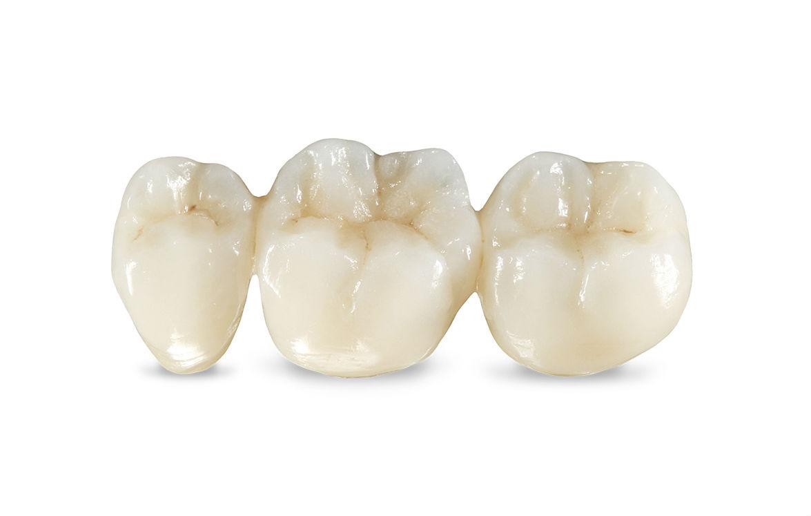 Безметалловая зубная керамика