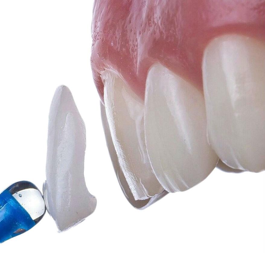 Виниры — восстановление эстетики формы зубов