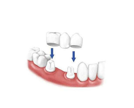 Мостовидные протезы - эстетичное замещение зубов