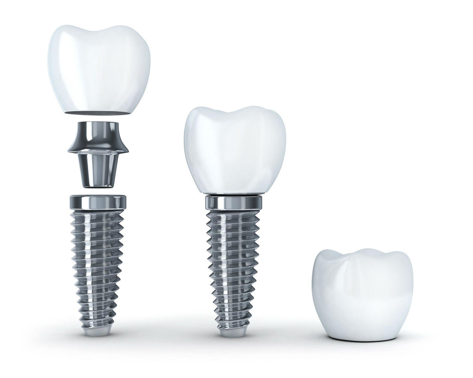 Составные части зубного импланта