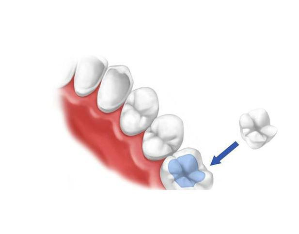 Вкладки - эффективная реставрация жевательных зубов