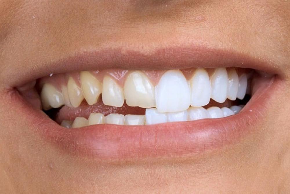 Керамические виниры — исправление несовершенств цвета и формы зубов