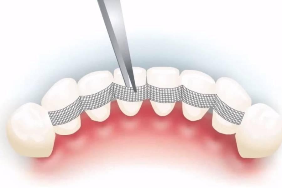 Проведение временного шинирования зубов