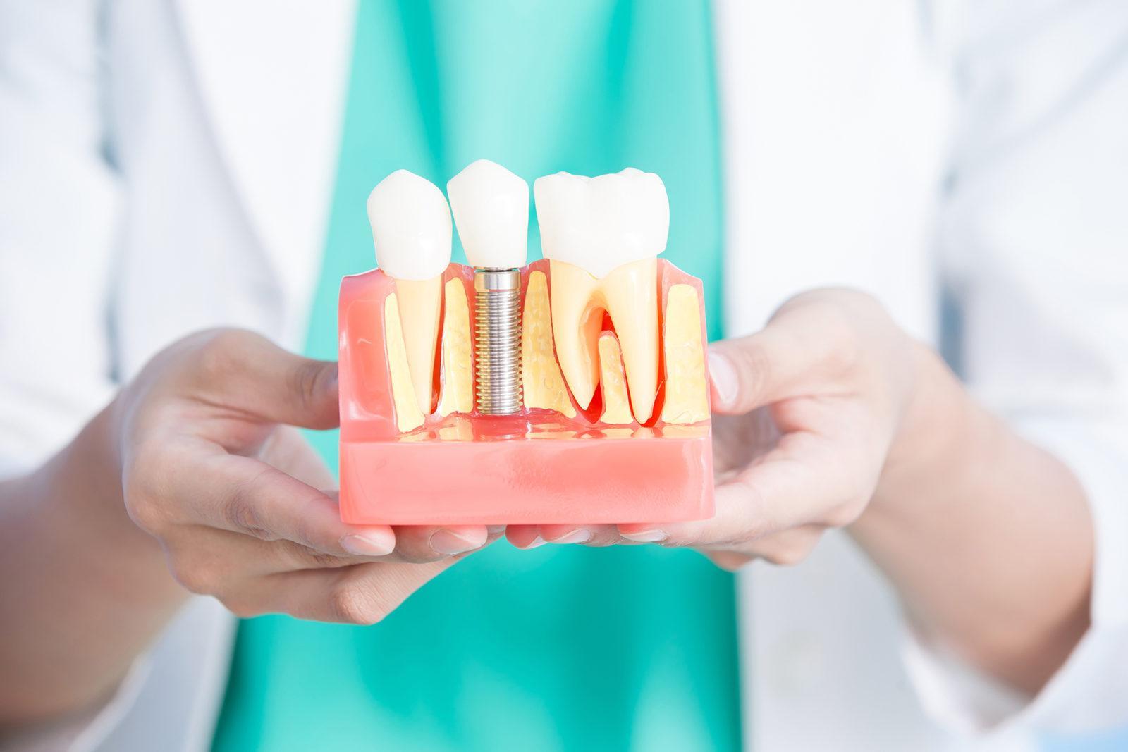 Имплантация зубов: комфорт, надежность, высокая эстетика