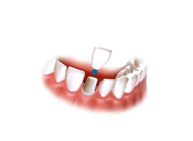 Коронки - восстановление формы разрушенного зуба