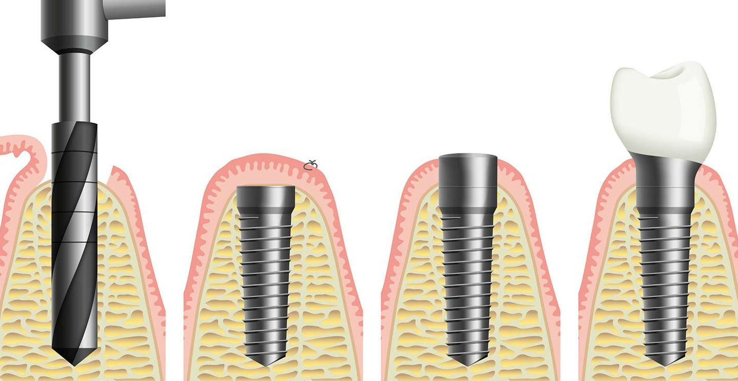 Классическая (двухэтапная) имплантация зубов: этапы проведения