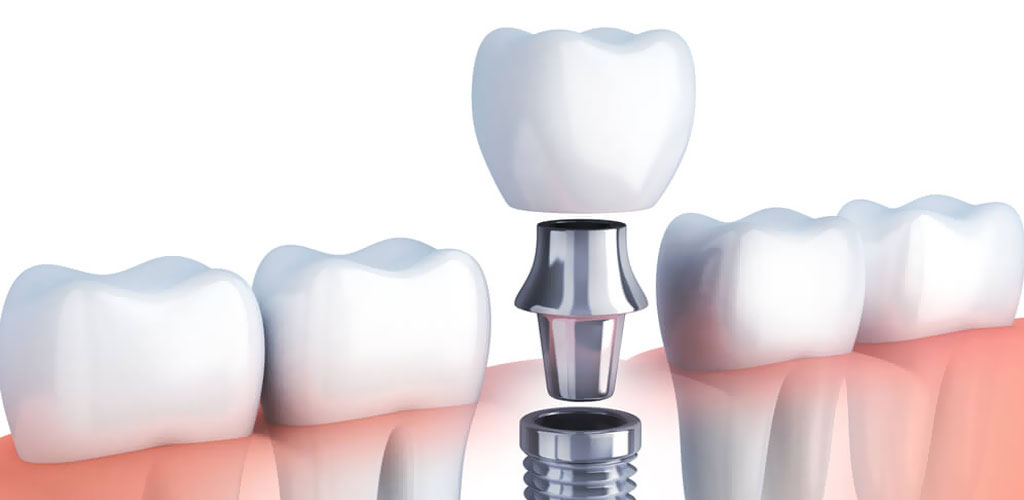 протезирования зубов на имплантах