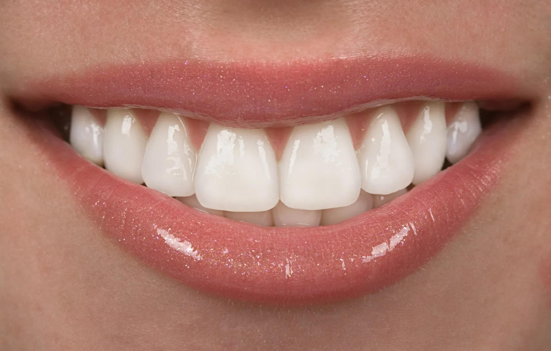 Моментальные виниры - эстетичная и надежная реставрация зубов