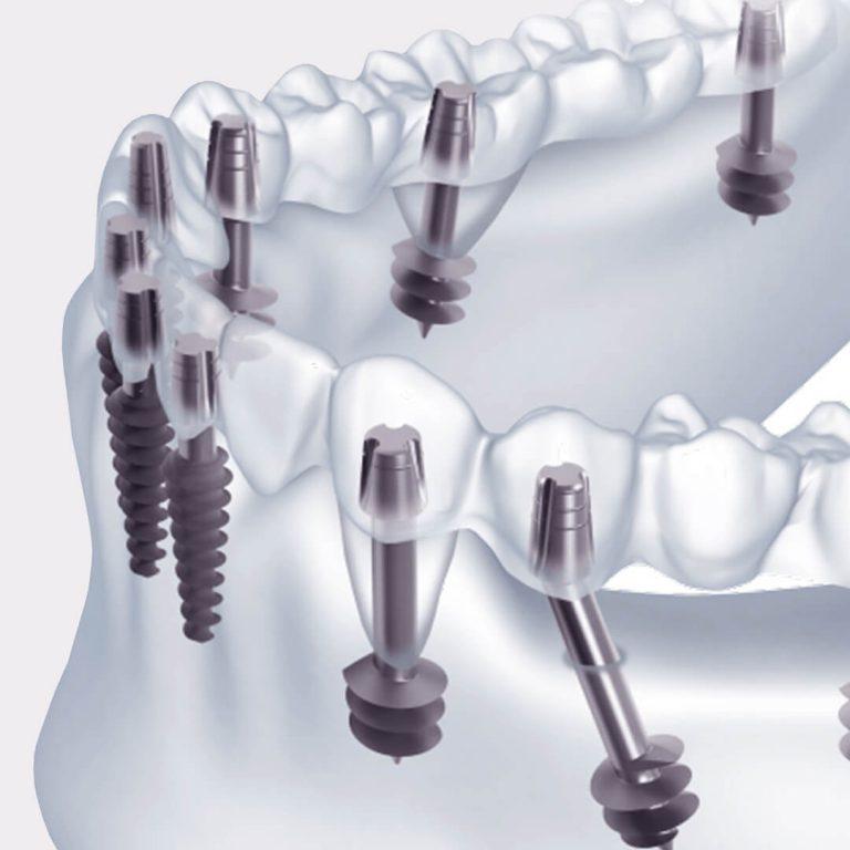 Базальная имплантация зубов при полной или частичной адентии