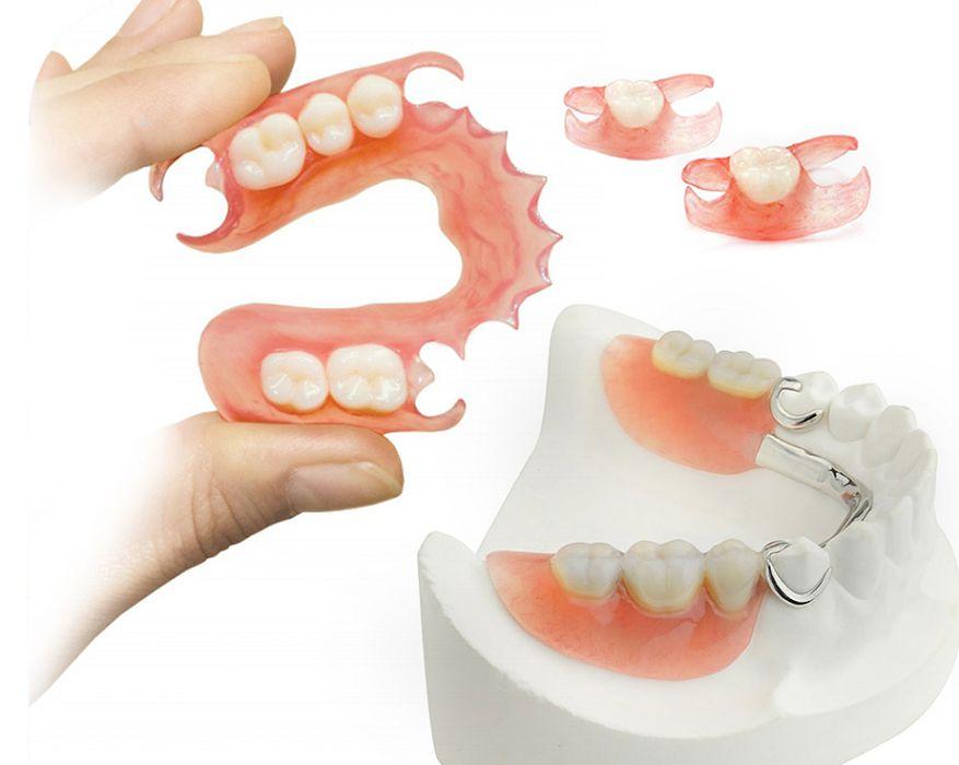 Протезирование зубов - восстановление красивой улыбки, жевательной эффективности