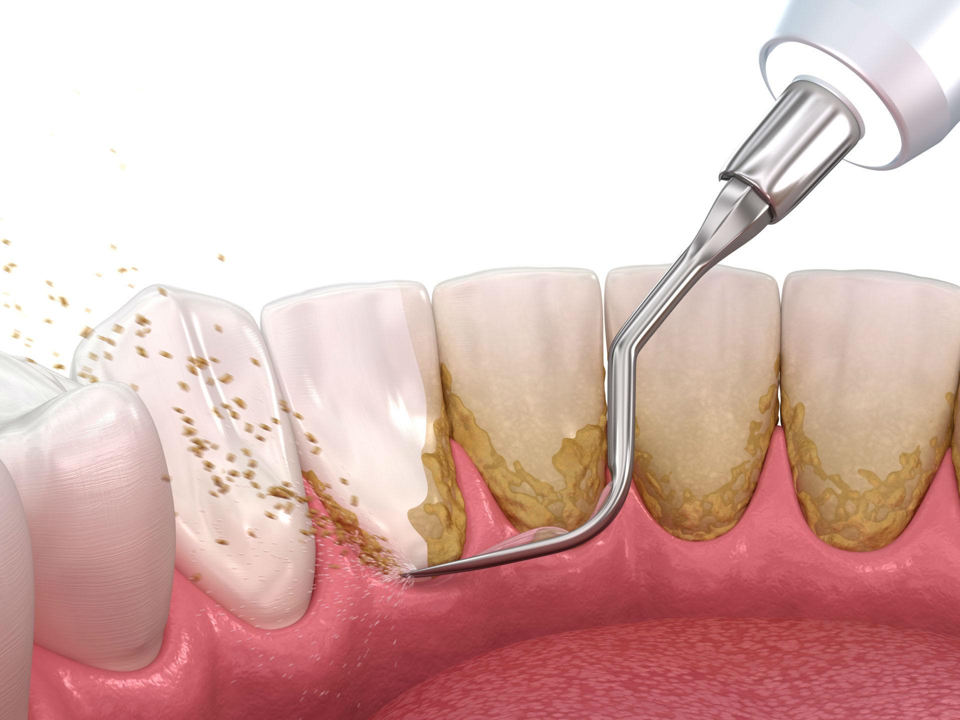Удаление зубного камня в клинике Семейный стоматолог