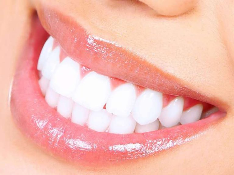 Офисное отбеливание зубов в Семейный стоматолог г Минск