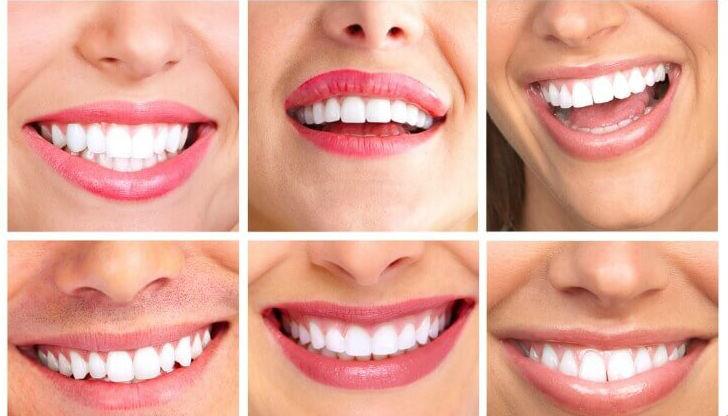 Отбеливание зубов в клинике Семейный стоматолог г Минск