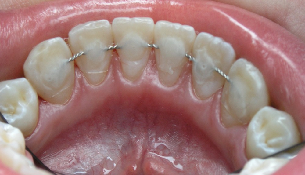 Шинирование зубов ортодонтической проволокой