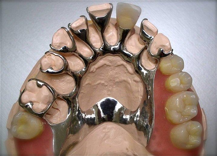 Шинирующий бюгельный протез