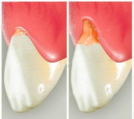 Клиновидный дефект твердых тканей зубов