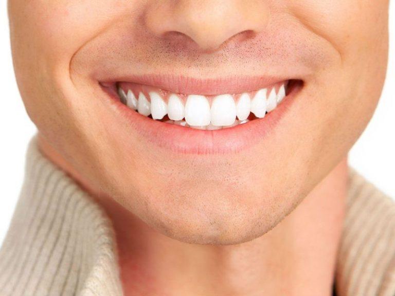 Эстетико-функциональная реставрация зубов