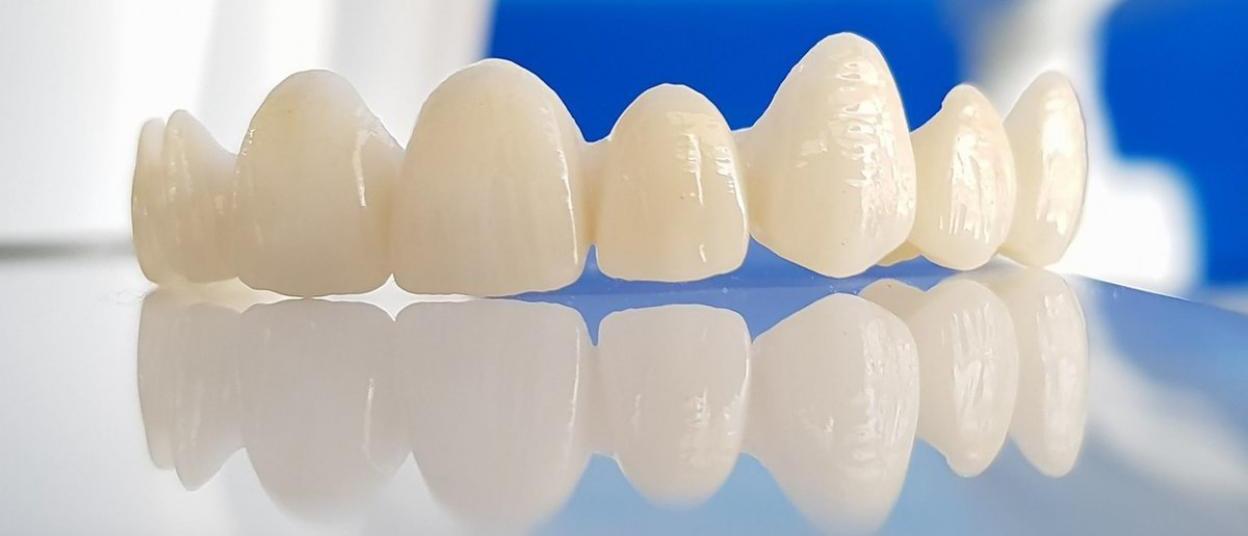Непрямой метод реставрации зубов