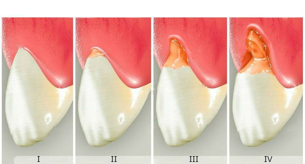Стадии клиновидного дефекта зуба