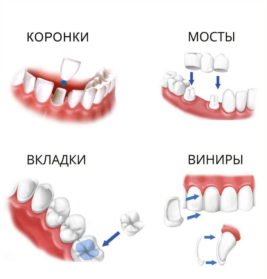 Протезирование зубов - восстановление красивой улыбки, несъемными протезами