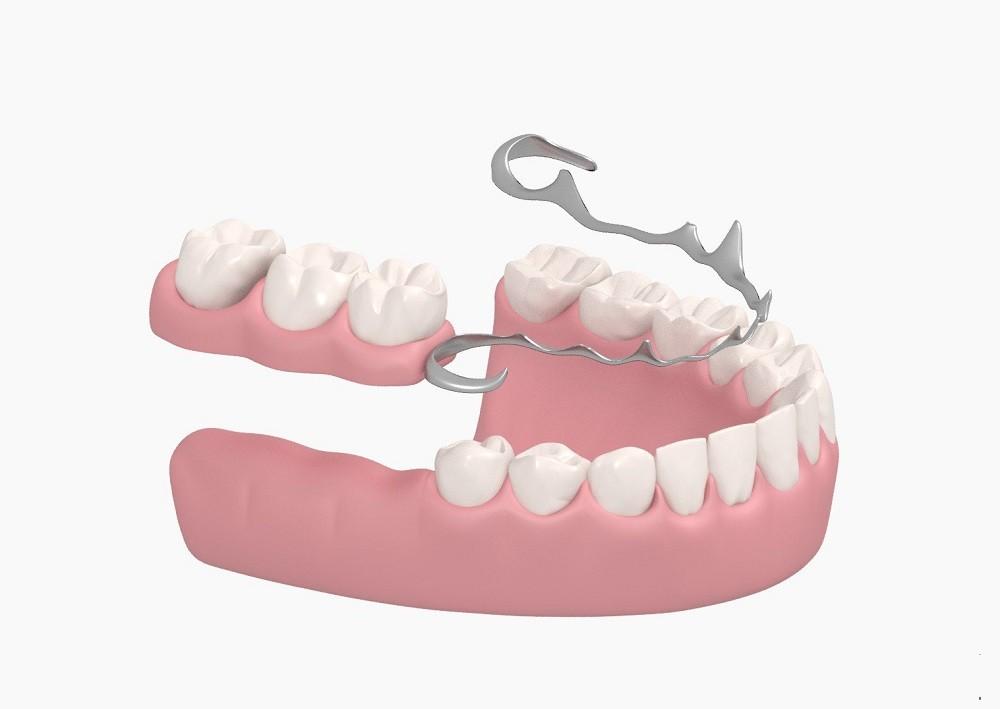 Бюгельное протезирование в Семейном стоматологе