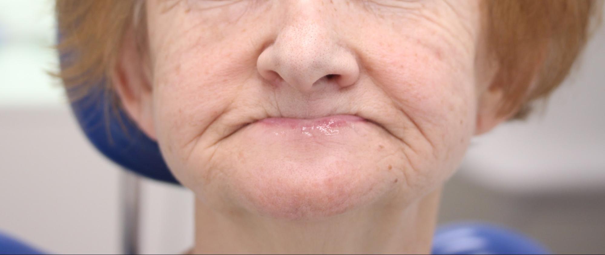 Вторичная адентия – полное отсутствие зубов