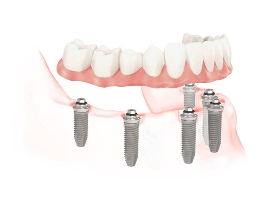 Протезирование all-on-6 в Семейном стоматологе