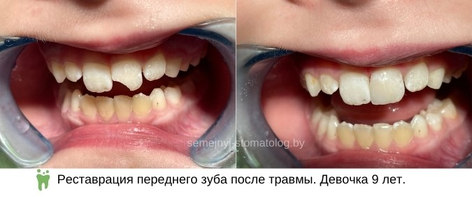 Реставрация переднего постоянного зуба после травмы. Девочка 9 лет