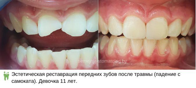 Эстетическая реставрация передних зубов после травмы (падение с самоката). Девочка 11 лет