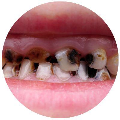 Интенсивное развитие кариес молочных зубов